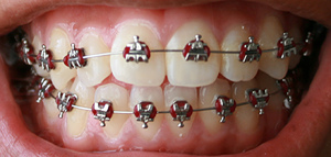 how to fix an overbite with braces