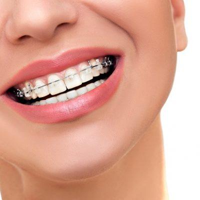 ceramic braces smile