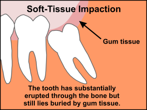 impacted wisdom teeth soft tissue