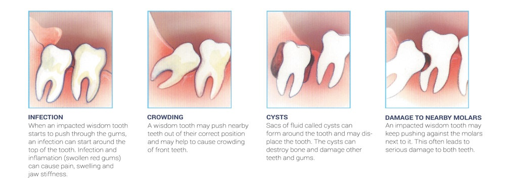 impacted wisdom teeth complications