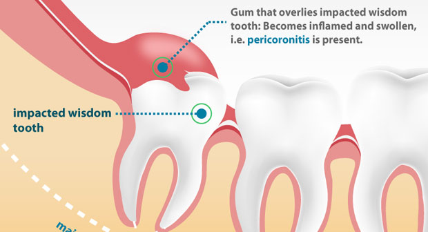 impacted wisdom teeth gum disease