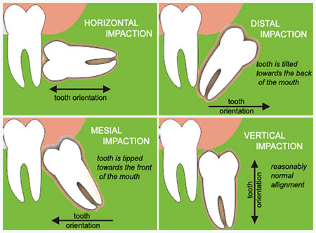 impacted wisdom teeth categories