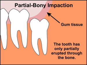 impacted wisdom teeth partial bony