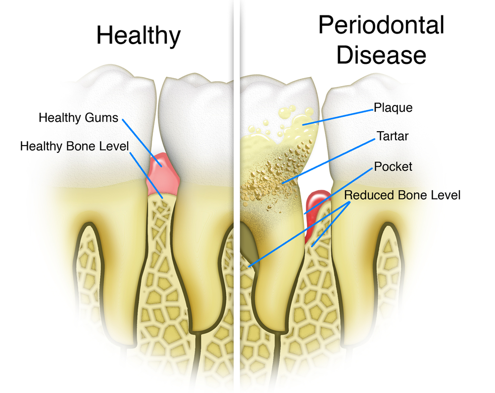 receding gums and periodontal disease