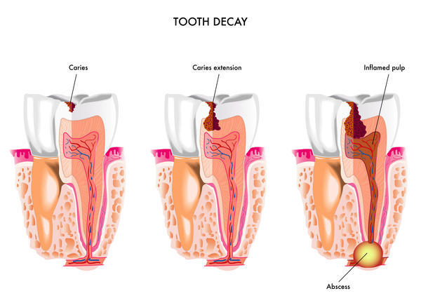 tooth extraction aftercare decay