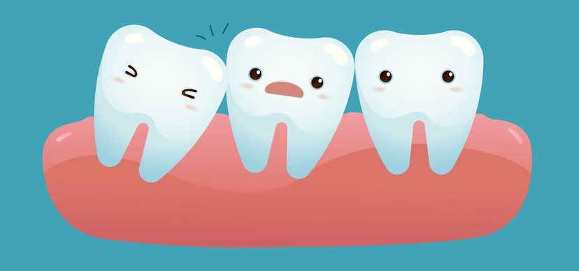 Foods To Eat After Teeth Removal