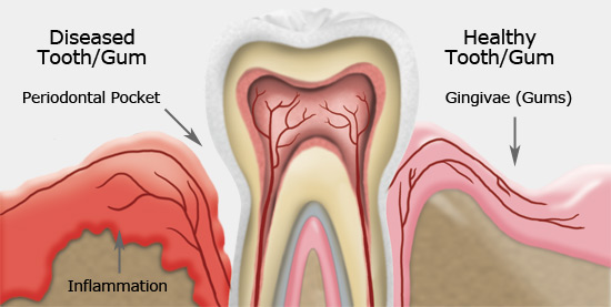 infected gums periodontitis