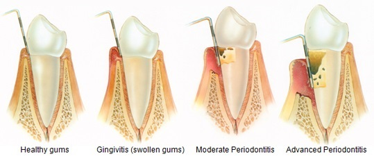 infected gums stages