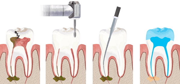 Root canal vs extraction: root canal procedure.
