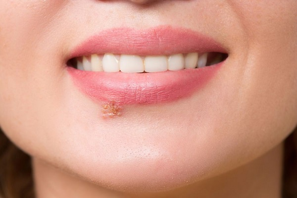 cold sore blister on lip