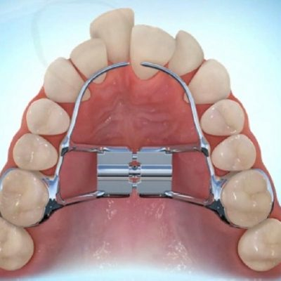 What is a Rapid Palate Expander?
