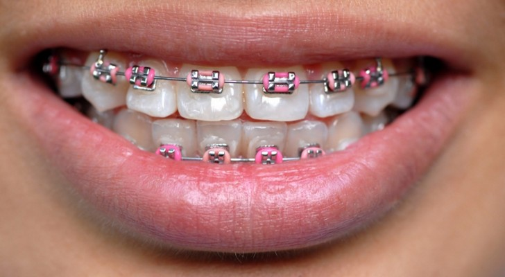 Braces colors that look good together
