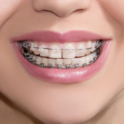 White spots and braces on teeth