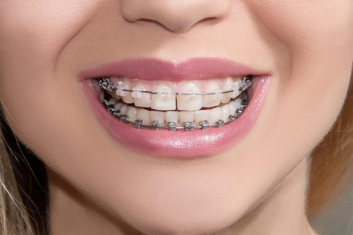white spots after braces