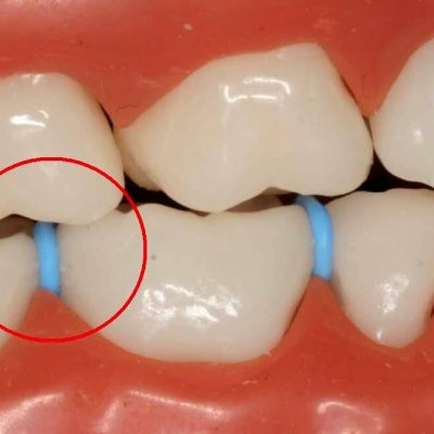 What are Spacers for Braces?