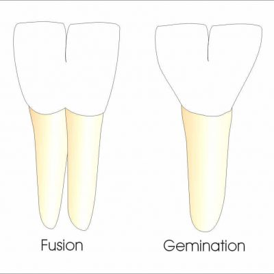 double teeth: tooth gemination and tooth fusion