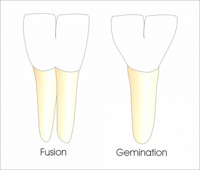 "Double fused ""baby"" teeth: tooth gemination and tooth fusion"
