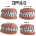 Malocclusion: Definition, Classes, and Types