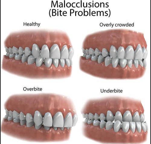 malocclusion types overview