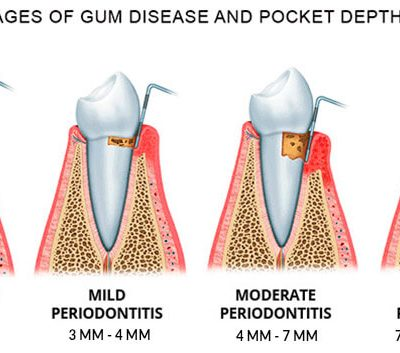 sensitive gums stages of periodontitis