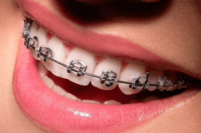 types of braces metal braces