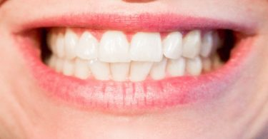 Demineralization and Remineralization of Teeth