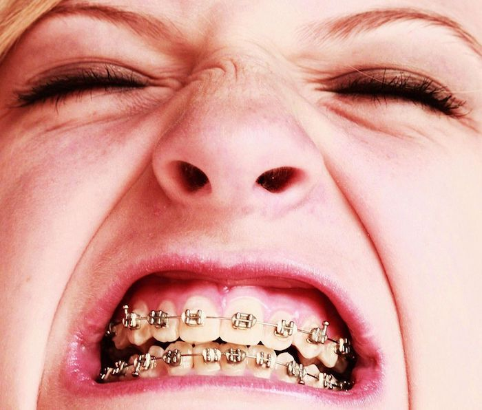 How to Make Your Braces Stop Hurting - Healthrow.net