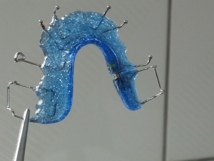 How to Remove Plaque From Your Retainer
