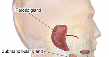 Obstructive Salivary Gland Disorder