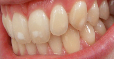 how to restore tooth enamel