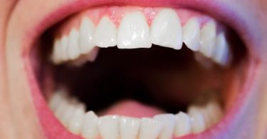 How Long do White Fillings Last?