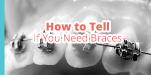 do you need braces