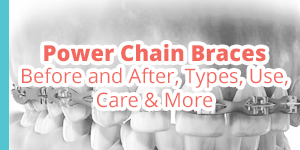 power chain braces