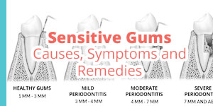 sensitive gums