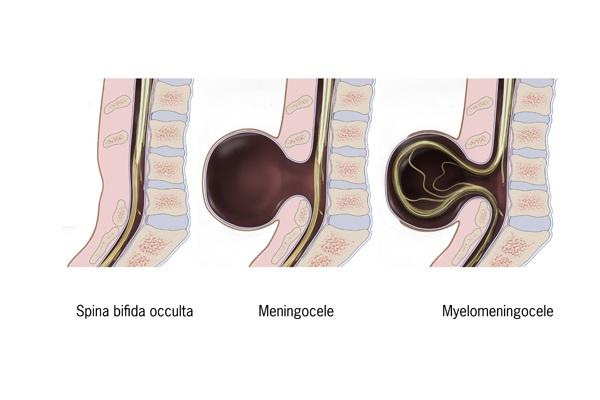 spina bifida types