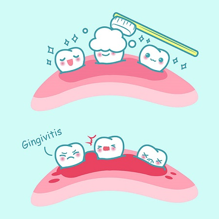 illustration of gingivitis
