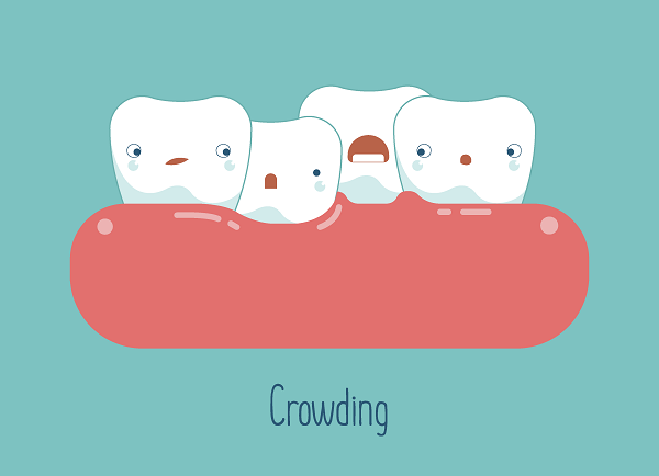 illustration of teeth crowding