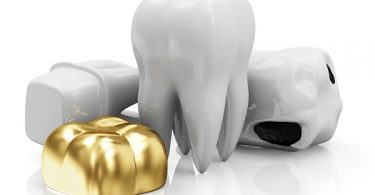 dental crown next to teeth