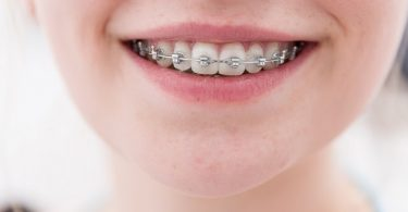 girl wearing metal braces