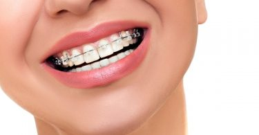 woman smiling and wearing ceramic braces