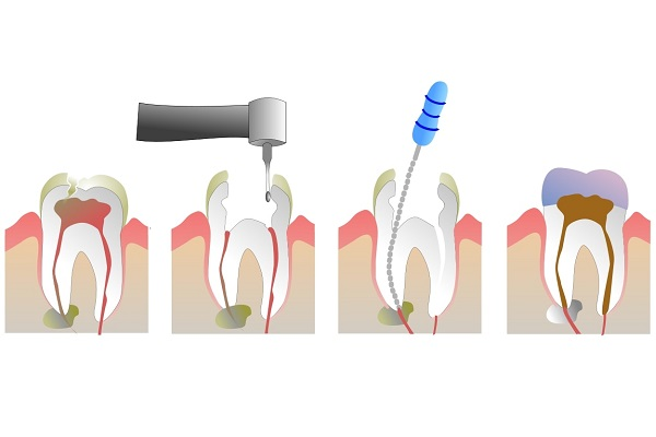 stages of endodontic treatment