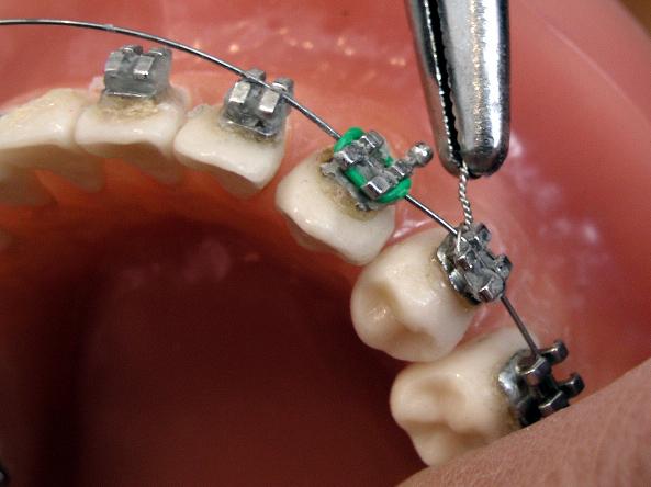 dentist installing braces