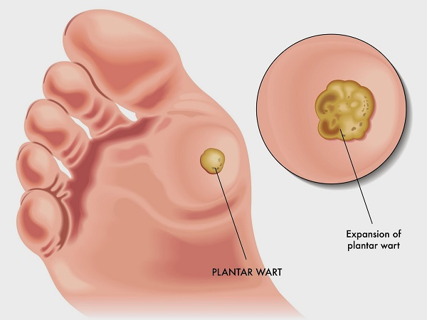 plantar wart illustration